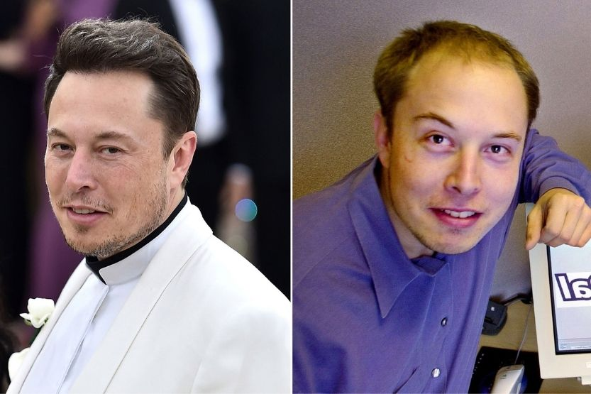 Elon Musk Hair Transplant - Before and After